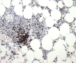 Immune cells (brown) gather at the site of a tumor in bone marrow following immunotherapy