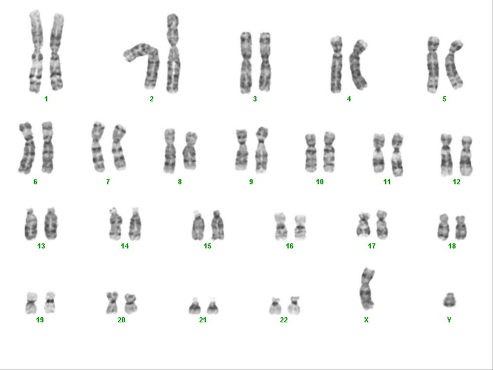 You can diagnos... Y Chromosome Sperm
