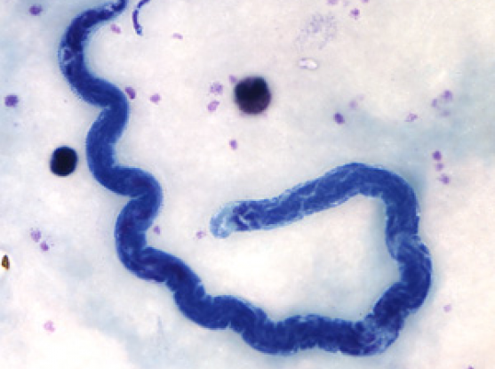 loa loa L loa is one of three parasitic filarial nematodes that cause subcutaneous filariasis in humans the other two are mansonella streptocerca and onchocerca volvulus.