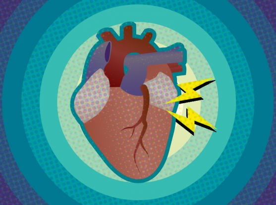 Mgh Study Suggests Genetic Link In >> Study Reveals New Link Between Atrial Fibrillation And Mutations In